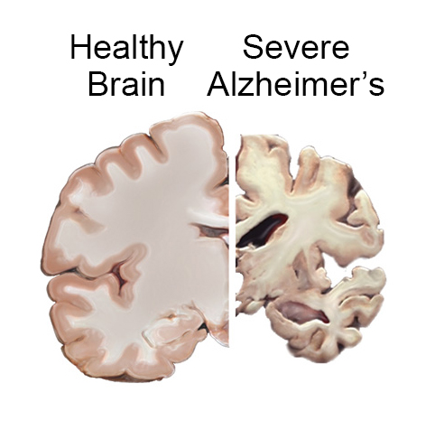 alzheimer aluminium diet and health